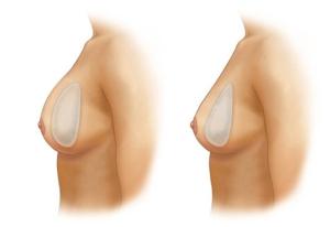 силиконовые импланты